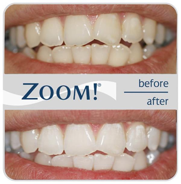 Flash your way to a gleaming smile in 40 mins with teeth whitening - safe and effective   For more info contact 011 46413705, 01146413714 or drkandhariinic.com   Teeth Whitening in Greater Kailash, Teeth Bleaching in GK1, Best Dentist in De - by Dr Kandhari's Skin & Dental Clinic, New Delhi
