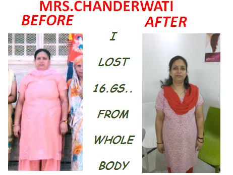 Weight loss result.  - by Weight Loss Consultant, New Delhi