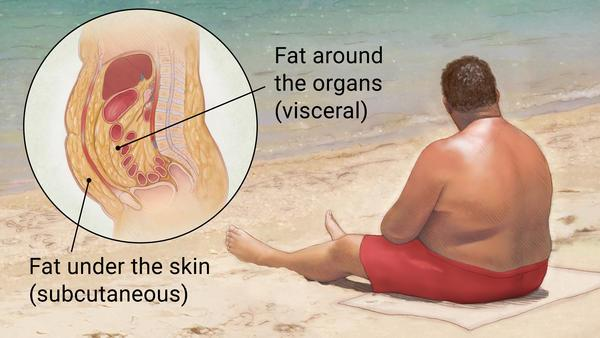 Obesity  When an individual is overweight then this condition is known as obesity. In this condition extra fat get accumulated on belly, thighs, buttocks and breast. It may cause to arthritis, diabetes and hypertension. - by HEALTHCARE AYURVEDA, Mohali