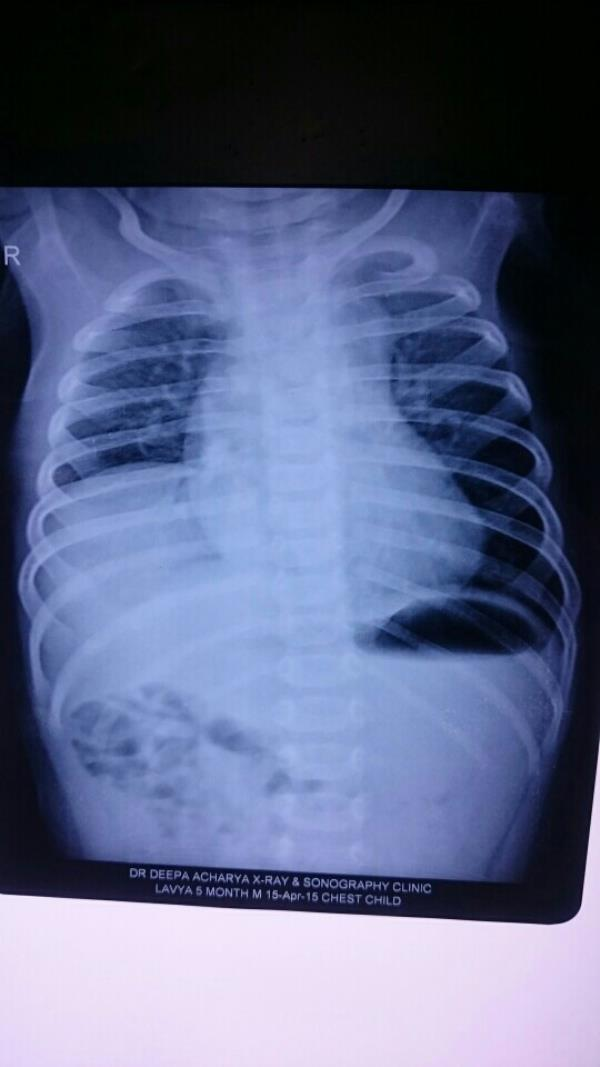 Eventration of Diaphragm: a condition in which child has flaccid hemidiaphragm(a partition between lungs and stomach).  Results in recurrent lung infections / exercise intolerance. Needs surgical correction to fix it at its ideal position t - by White Lily Children Surgical Hospital, Ahmedabad