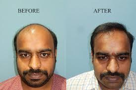 Fue hair transplant is the quick way to get your old look back, this is the proven surgery and we have made thousands of happy people who came to us.  If you need hair related issues please get in touch with us, we will give you our best po - by Hair Sure Hair Transplant Centre, Hyderabad, Telangana