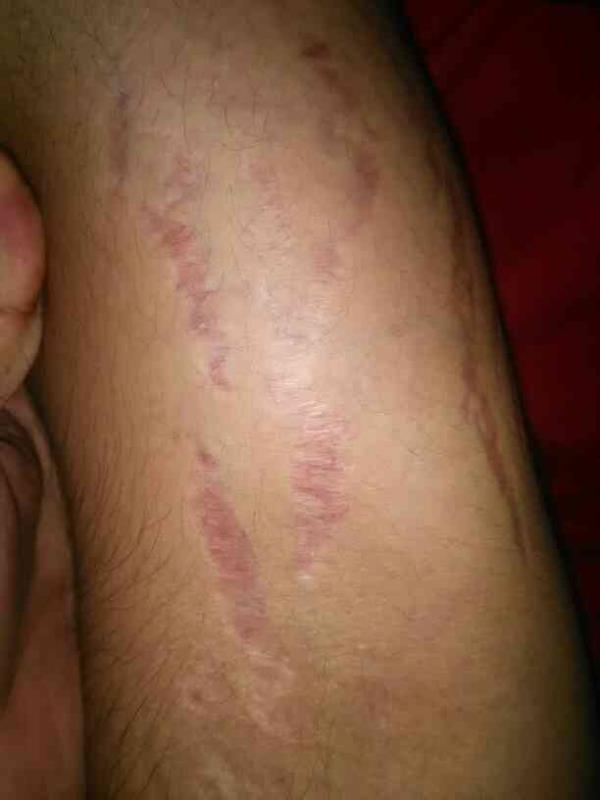 over the counter steroid cream: melting of skin forming deep stretch marks - by Skinclinic, Bangalore