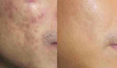 Laser treatment for Acne Scarring in Delhi by fractional CO2 laser in Delhi - by Dermaworld Skin & Hair  Clinic, Delhi