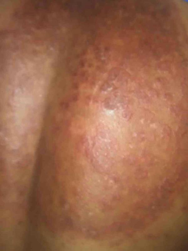 fungal infection treated with steroids and the results - by Skinclinic, Bangalore