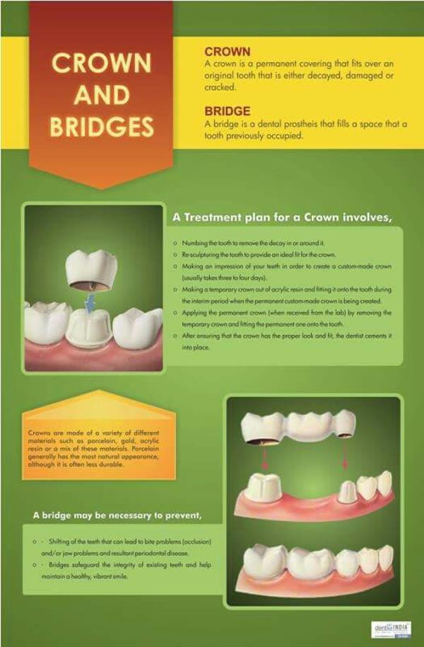 we at smilecure dental clinic offer you the best in oral care crowns and bridges and what's more the crowns which we deliver are done using the recent CAD- CAM technology so that you don't have to worry about its fit and comfort... so just  - by SmileCure Multispeciality Dental Clinic, Bangalore