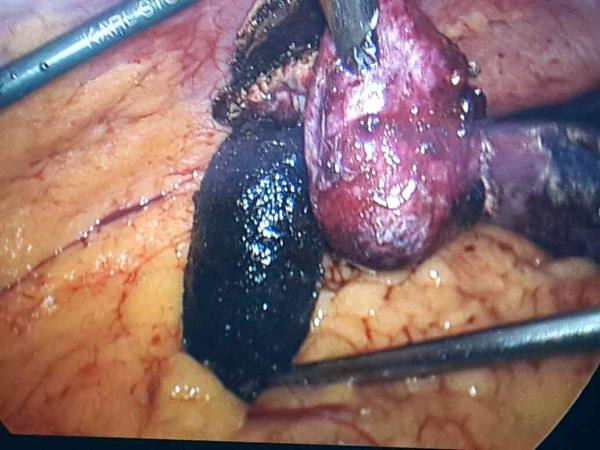 """gall bladder and stone almost of same size.....😰😰😰😰 - by Laparoscopic Abdominal  surgery by  """"ONLY ONE SMALL CUT """"  in Navel at FORTIS HOSPITAL, NOIDA, Noida"""