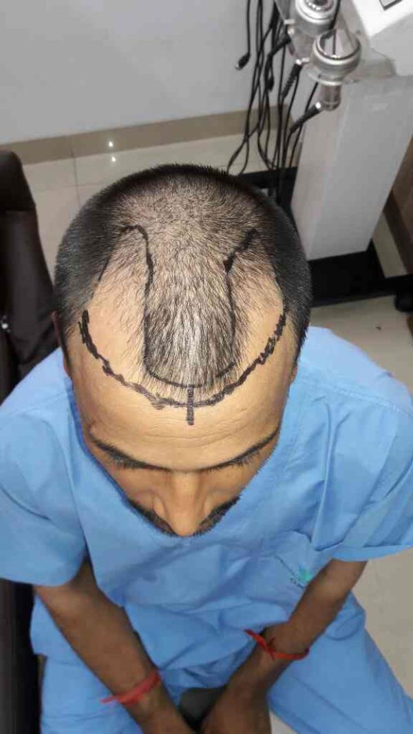 Best Hair Transplant centre of Mira Road. World Class results at affordable cost..!!  - by Esthetiqueclinic, Mumbai