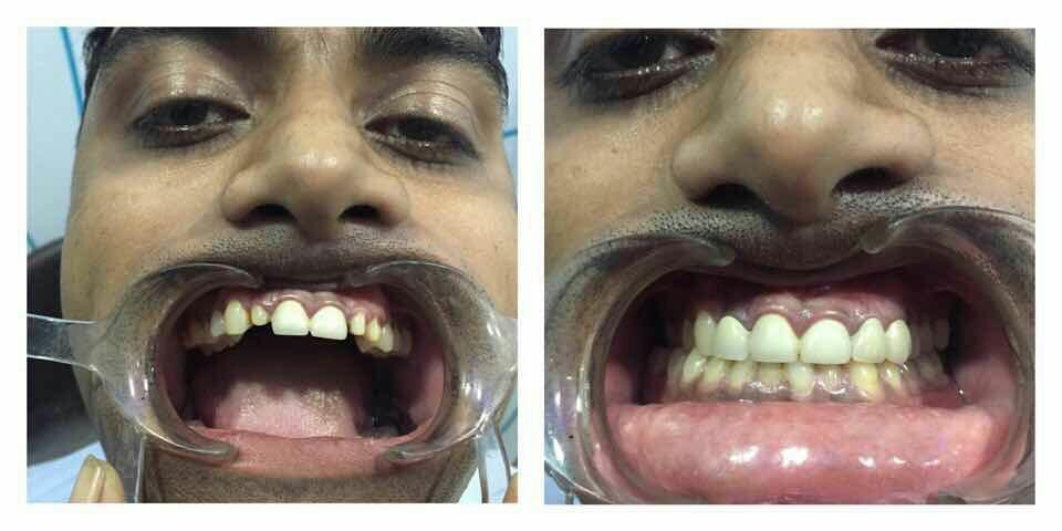 We are best dental clinic in bhopal. - by Orodental Clinic, Bhopal