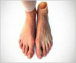 We are a leading manufacturer of Artificial Silicone Foot in Vadodara, Gujarat. - by The Silicone Rehab, Vadodara