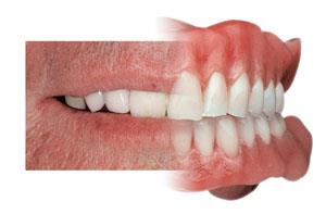 most of 95 people out of 100 edentulous patient are happy with coplete denture littal habit from patient side and more effort from our side the edentulous person can lesd the life very smoothaly  compleat denture in pune  compleat denture i - by My Dental Care, Pune