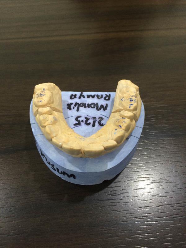 Dentist in Akshay nagar Bangalore  - by Smile Craft, Bangalore Urban