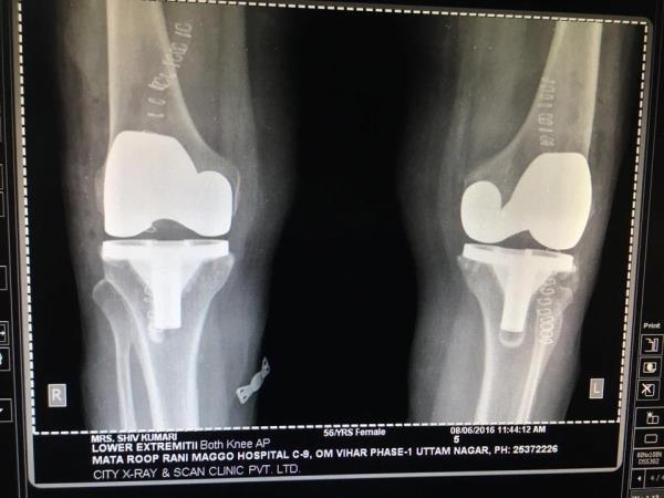 Bilateral Knee Transplant in Uttam Nagar  When the Cartilage has worn away in both knees, an Artificial Knee (called a Prosthesis) can take its place. The Surgery to Implant both of the Prosthesis is termed a Bilateral Total Knee Replacemen - by Mata Roop Rani Maggo Hospital, New Delhi