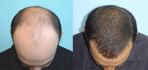 HAIR TRANSPLANTATION  HomeServicesHair Transplantation  FOLLICULAR UNIT EXTRACTION OR FUE HARVESTING  WithFollicular Unit Extractionor FUE harvesting, individual follicular units containing 1 to 4 hairs are removed under local anesthesia. - by Cochin Hair Transplantation, Ernakulam