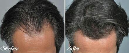 PRP  HomeServicesPRPPlatelet-rich plasma (PRP)has become a newer method for the treatment of various types of alopecia. In this prospective study, safety, efficacy and feasibility of PRP injections in treating androgenic alopecia were asse - by Cochin Hair Transplantation, Ernakulam