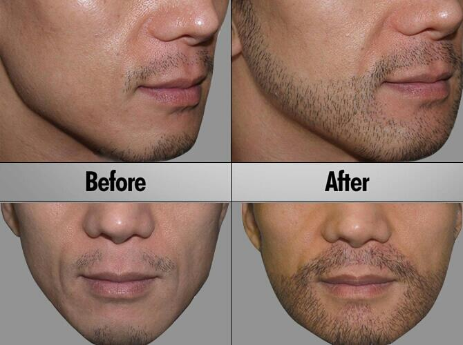 BEARD TRANSPLANTATION  HomeServicesBeard TransplantationFacial hair transplantation is a procedure which restores hair to areas where facial hair growth is thin or missing. While this procedure is most commonly performed on the goatee and m - by Cochin Hair Transplantation, Ernakulam