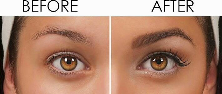 EYEBROW TRANSPLANTATION  HomeServicesEyebrow TransplantationEyebrow transplants are designed to restore growing hair to eyebrows that are overly thin, scarred, or completely missing. The absence of hair can be due to genetics, prior electro - by Cochin Hair Transplantation, Ernakulam