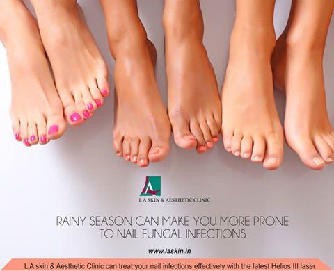 Rainy season can make you more prone to nail fungal infections. L A Skin & Aesthetic Clinic can treat your nail infections effectively with the latest Helios III laser Book an appointment today. ‪#‎laskin‬ ‪#‎la‬ ‪#‎laskinandaestheticclinic - by L A Skin & Aesthetic Clinic, New Delhi