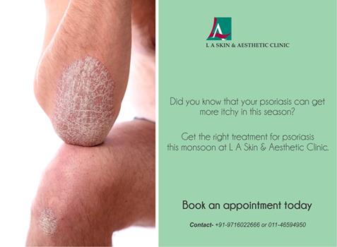 Did you know that your psoriasis can get more itchy in this season? Get the right treatment for psoriasis this monsoon at L A Skin & Aesthetic Clinic. Book an appointment today! ‪#‎laskin‬ ‪#‎la‬ ‪#‎laskinandaesthetic‬ ‪#‎laclinic‬ ‪#‎lader - by L A Skin & Aesthetic Clinic, New Delhi