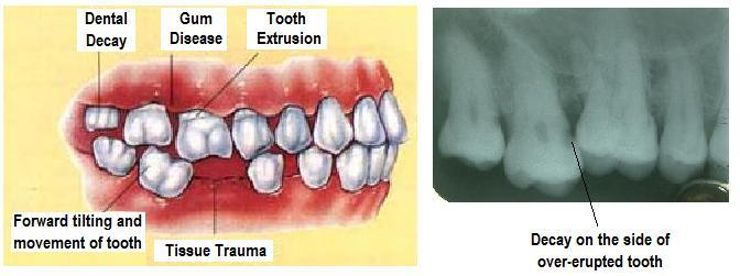 One of the biggest dental problems that can happen to someone is the loss of a tooth. Often people consider loss of teeth insignificant. However, the fact is that apart from cosmetic problems, functional problems and a compromised chewing m - by Dental Vacations - Dental Tourism Division of Smile Centre, Kochi, Kerala, India, Cochi