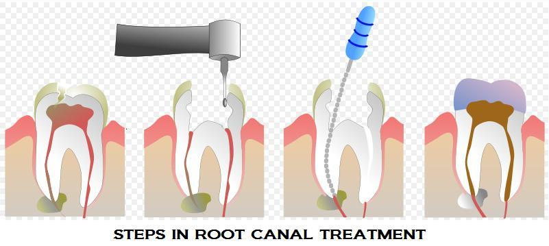 Root Canal Therapy ( R C T )  At the center of a tooth is a hollow area that houses soft tissue, known as pulp or nerve. This hollow area contains a relatively wide space in the coronal portion of the tooth called the pulp chamber. This cha - by Dental Vacations - Dental Tourism Division of Smile Centre, Kochi, Kerala, India, Cochi