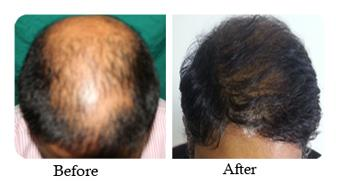 Hair Transplantation service in Bangalore.  Hair transplantation refers to transfer of intact hair from one part of the body to another. Typically this procedure offers a solution for those seeking to replace hair loss. - by Clinique Belle, Bangalore