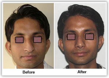 Rhinoplasty services in Bangalore.   Rhinoplasty is commonly known as nose surgery or nose job, is the method by which the shape of the nose is changed to a more desirable one. - by Clinique Belle, Bangalore