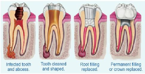 ROOT CANAL TREATMENT   Root canal treatment is a treatment to repair a severely damaged or infected tooth instead of removing it.   Best Clinic for painless Root Canal Treatment in Delhi.