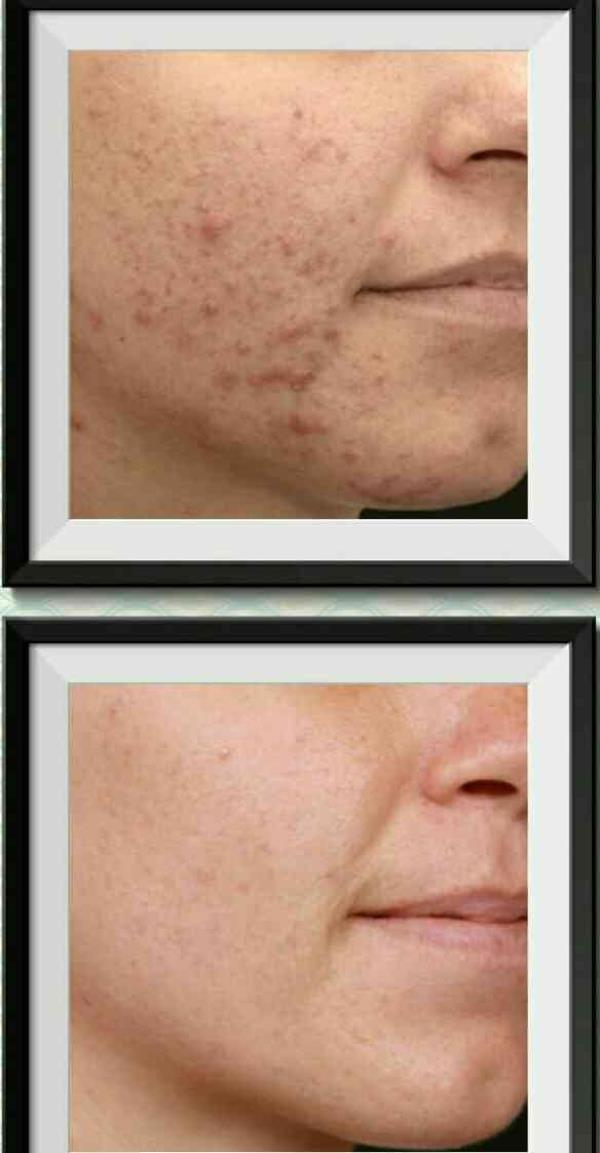 Fight pimples from their roots with ITS Acne treatment. I.T.S. CLINIC C- Scheme. - by I.t.s. Clinic-  Innovative Treatments & Solutions, Jaipur