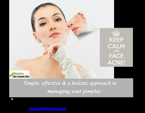 Acne treatment in Chennai  Acne/Pimples are caused by multiple factors such as hormone imbalance, food habits, environmental factors, stress and injudicious use of cosmetic products. A thorough assement of your lifestyle habits will help cl - by Derme Cure Skin & Cosmetic Clinic Call Us: 8220558899, Chennai