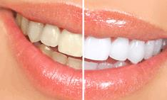 Dentist Laser Tooth Whitening in Santhome Dentist Laser Tooth Whitening in Mylapore   Everybody loves a bright white smile, and there are a variety of products and procedures available to help you improve the look of yours. Many people are satisfied with the sparkle they get from daily oral hygiene and regular cleanings at your dentist's office, but if you decide you would like to go beyond this to make your smile look brighter, then look no further… You have come to the right place. Tooth Whitening