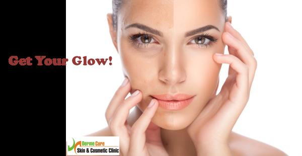 Skin Glow Treatment  Derme Cure offers a wide range of skin lightening treatments. At dermecure, we assess the reasons for the skin pigmentation & provide appropriate advice on various skin lightening therapies depending on the severity of  - by Derme Cure Skin & Cosmetic Clinic Call Us: 8220558899, Chennai