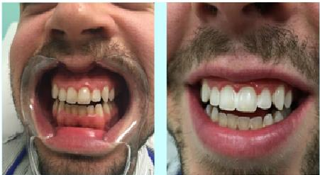 Teeth Whitening   Tooth whitening is an efficient way to lighten the shade of our teeth without reducing the actual tooth structure.   Superspeciality dental clinic in North Zone, Delhi.