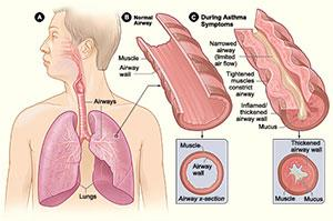 Ayurvedic Medicine For Asthma, We Are Providing Ayurvedic Treatment For All Upper Respiratory Disorders. With Ayurvedic Medicine Asthma Is Controlled & Use Of Inhalers Are Discontinued Slowly And Steadily.  We  Are Pioneers In Treating Alle - by Dr. Aggarwal's Ayurvedic Panchakarma & Research Centre, Mohali