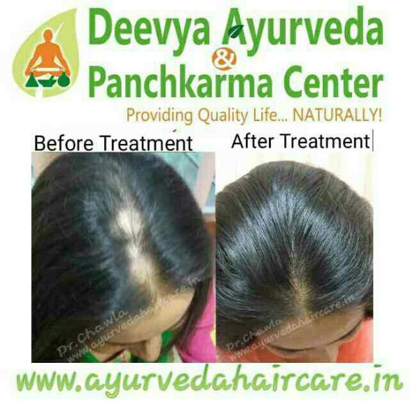 Hairloss in Men, Male pattern Hair Loss, Female pattern  Hairloss, Hair Thinning, Alopecia, Androgenic Alopecia, Alopecia Areata, Hair Fall , Dandruff , Scalp Itching, Eyebrow Hairloss, Beard Hairloss, For New Hair Growth visit us at www.ayurvedahaircare.in