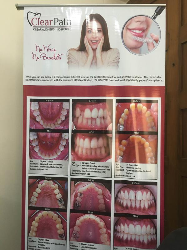 Clear path aligners