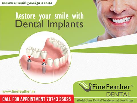 Our Dental Clinic has paved its way in becoming one of the Best Dental Clinic because we give painless treatments at Affordable Prices. We have been striving to give more than 96% success rate of Dental Implants at our Dental Clinic. This i - by FineFeather Dental Gandhinagar, Gandhinagar