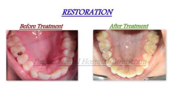 Tooth Filling Treatment in Chennai. Patient came with complaint of Decayed Teeth. We Restored with the tooth Colored Filling material.  For Appointment call :- +9710442527 / 7299004333 Email:- parasudentalimplantcenter@gmail.com - by Parasu Dental Hospital - 9710442527, Chennai