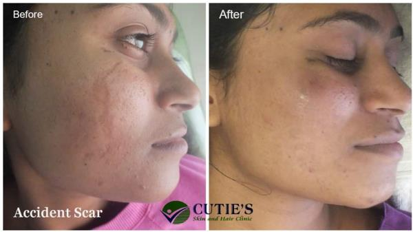 We are one of Leading Skin Care clinic in Vastrapur, Ahmedabad. We have provide successful treatment for Skin related problem.