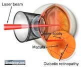 Eye surgeon in mohali  Retinal detachment occurs when the retina separates from the outer layers of the eye. If not treated early, retinal detachment may lead to partial or complete loss - by CHANDIGARH EYE AND LASER CLINIC     CALL- 9357519888, Chandigarh