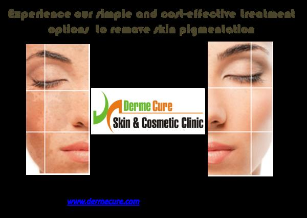 Skin Glow Treatment  Derme Cure offers wide variety of Skin Lightening Treatments which are safe, effective and long lasting.  Learn more about Skin Brightening at www.dermecure.com   Skin Lightening Treatment in Chennai Skin Glow Tablets S - by Derme Cure Skin & Cosmetic Clinic Call Us: 8220558899, Chennai