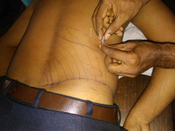 advanced treatment technique DRYNEEDLING applied for back pain patient got immediate relief.