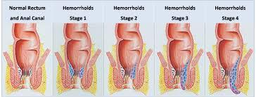 Best Homeopathy doctor for Piles in Chennai  Hemorrhoids (Piles) are blood vessels located in the smooth muscles of the walls of the rectum and anus. They are a normal part of the anatomy and are located at the junction where small arteries - by Niveena Homeo Clinic, Chennai