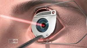 eye doctor in chandigarh LASIK is a surgical procedure that uses a laser to correct nearsightedness, farsightedness, and/or astigmatism. In LASIK, a thin flap in the cornea is created using either a microkeratome blade or a femtosecond lase - by CHANDIGARH EYE AND LASER CLINIC     CALL- 9357519888, Chandigarh