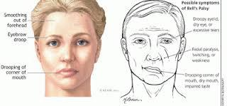 Facial nerve problems and Bell's palsy facts  Facial nerve disorders affect the muscles of the face.  There are many causes of facial nerve disorders.  A number of tests can be helpful to diagnose the cause of a facial nerve disorder.  The  - by Niveena Homeo Clinic, Chennai