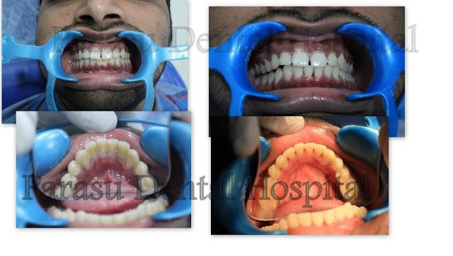 Teeth cleaning Treatment Before and After Treatment - by Parasu Dental Hospital - 9710442527, Chennai