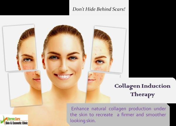 Acne Scar Treatment  Collagen Induction therapy is a method to resurface Acne Scars. It  enhances body's natural collagen production under the skin, which helps to lift the scar to skin level. Thus, recreating a firmer and a smoother lookin - by Derme Cure Skin & Cosmetic Clinic Call Us: 8220558899, Chennai
