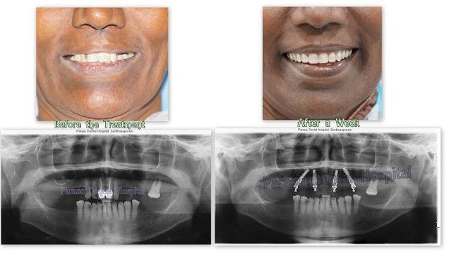 Allon4 Implants Treatments Patient smile very Confidently and teeth given in 3 days,  For Appointment call us :- +9710442527 / 7299004333 - by Parasu Dental Hospital - 9710442527, Chennai